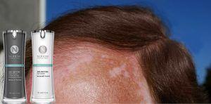 ¿Quieres conocer la más efectiva cura para el vitiligo?