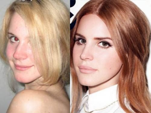 Before Lana Del Rey had plastic surgery (9 photos) ... nose, lip & ears