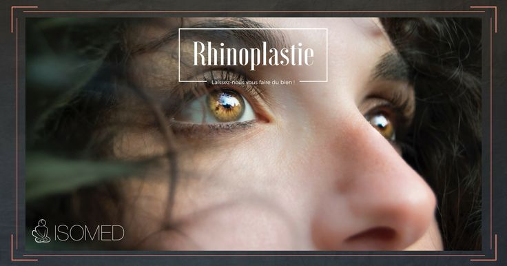 À la clinique ISOMED, la chirurgie du visage demande un sens aigu de l'esthétisme et de la beauté du nez. Tout cela requiert un certain talent artistique. Nous écouterons attentivement vos préoccupations à l'égard de la forme de votre nez et pourrons vous conseiller et définir les caractéristiques qui maximiseront votre beauté naturelle et qui harmoniseront votre nez avec votre visage. Vous aurez accès à une technique de modélisation préopératoire 3D. Tous les patients et tous les nez ne…