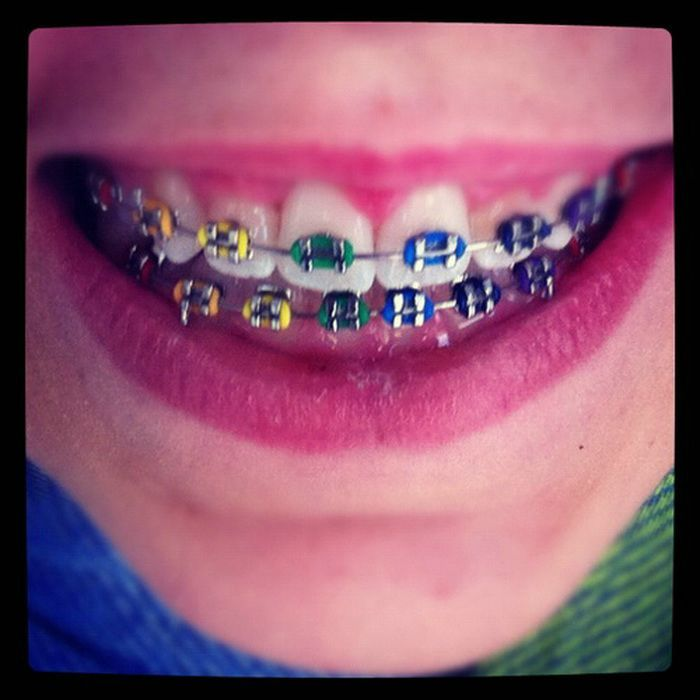 Cool Colors For Braces