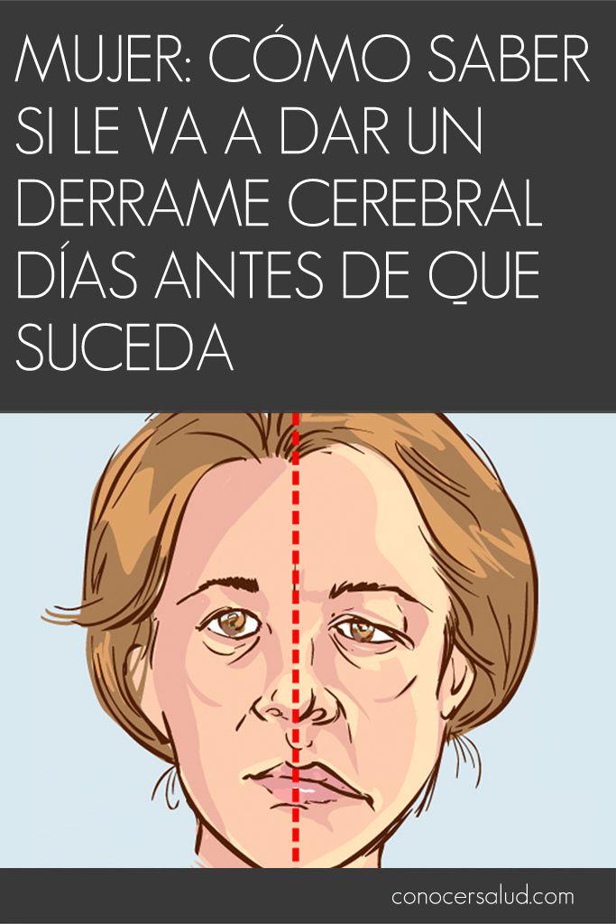 Mujer: Cómo saber si le va a dar un derrame cerebral días antes de que suceda #salud