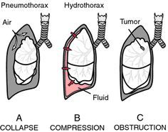 Mechanisms of atelectasis. A, Collapse of the lung in pneumothorax. B, Compression of the lung by pleural fluid. C, Resorption of the air from alveoli distal to an obstructed bronchus. Obstructive atelectasis is usually focal. Atelectasis of premature infants, which is caused by a deficiency of pulmonary surfactant, is not shown