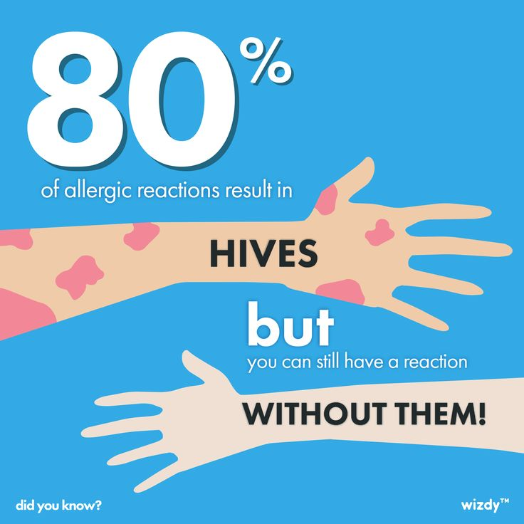 Just because you don't have hives doesn't mean you don't have an allergic reaction! Pay attention to your symptoms, as allergic reactions can be life threatening.Clara Jones