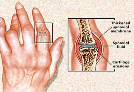 Rheumatoid Arthritis - Causes, Symptoms And Diagnosis | Doctor Tipster