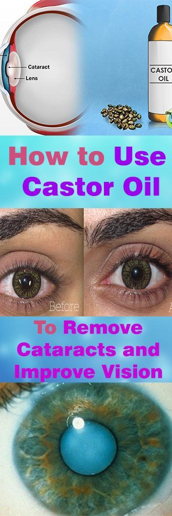 #Castor #Oil #Use #Remove #Cataracts #Improve #Vision #Eye #Eyesight #Health