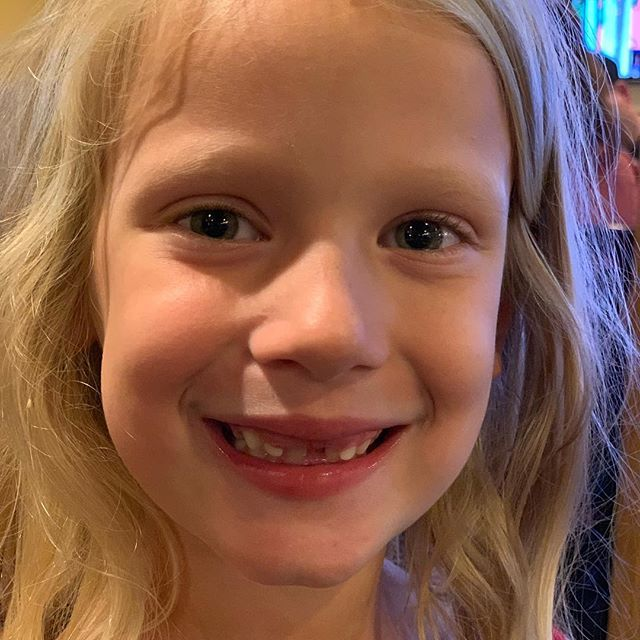 This Is My Minime Shes Lost Her Two Front Teeth And Isnt She Lovely Thegrands Grands Missingteeth Missingteethsmile Losing Her Teeth Baby Face
