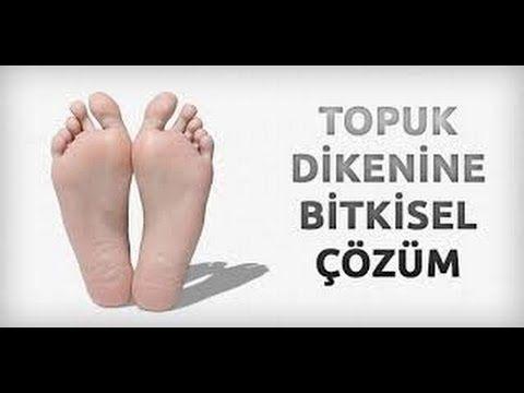 Topuk Dikeni Olanlar için Kür - İbrahim Saraçoğlu