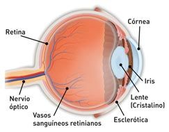 Cáncer de ojo - Información aprobada por un grupo selecto de Doctores de los Ojos.-El cáncer de ojo es un tumor maligno que se inicia y se desarrolla en el ojo. Un tumor maligno es un grupo de células cancerosas (células atípicas que crecen rápidamente y sin control), que pueden propagarse hacia otras partes del cuerpo o invadir y destruir tejidos.