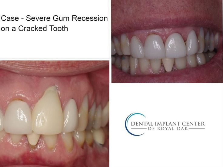 Patient Case - Severe Gum Recession on a Cracked Tooth.  If you are experiencing problems with a cracked tooth or your gums, please contact us for a free consultation.  Call us at (248) 547-3700. #DentalImplantsRoyalOak #gumrecession #crackedtooth