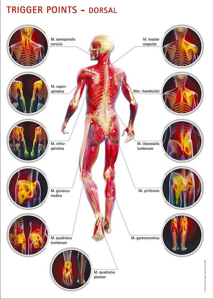 Muscle points. Massage for pain relief.