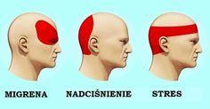 Oto jak skutecznie pozbyć się bólu głowy w zaledwie 5 minut. Tabletki nie będą już potrzebne!