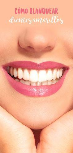 Con el tiempo, los dientes tienden a mancharse y a ponerse amarillos, esto empeora por fumar, tomar vino, o beber café. Pero para que sepas cómo blanquear dientes amarillos, te comparto varios remedios caseros para blanquear dientes de forma fácil y económica.