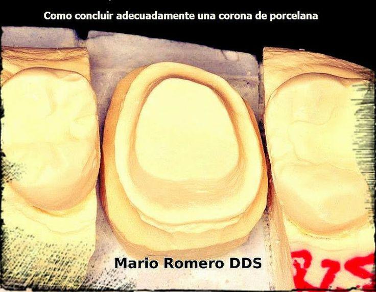 Como concluir adecuadamente una corona de porcelana - Dr. Mario Romero | Odonto-TV