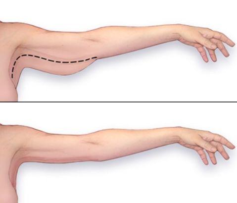 Jak se zbavit povyslé kůže a svalů v oblasti stehen a paží | Doplnkyvyzivy.cz