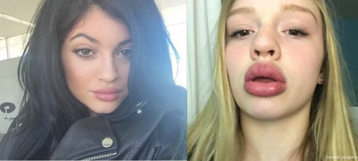 Kylie Jenner Lip Challenge Is Making Girls Look Scary and Hilarious (12 Photos)