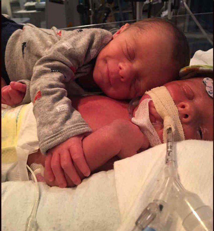 Murió el recién nacido al que su hermano gemelo abrazaba en una tierna foto
