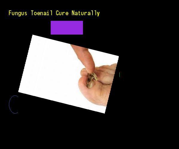 Fungus toenail cure naturally - Nail Fungus Remedy. You have nothing to lose! Visit Site Now #NailFungusYoungLiving #nailfungusremedy