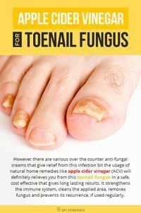 Toenail fungus is a common fungal infection that grows in moist, warm and dark environments that affects mostly on toenails and fingernails. Usage of natural home remedies like apple cider vinegar (ACV) will definitely relieves you from this toenail fungus in a safe, cost effective that gives long lasting results.