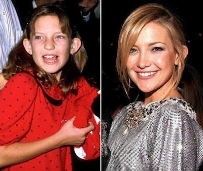 Kate Hudson. see not everyone was a gorgeous child.