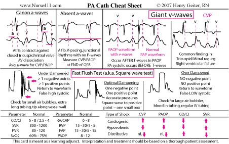 Dysrhythmia Cheat Sheet | PA-catheter Cheat Sheet Description