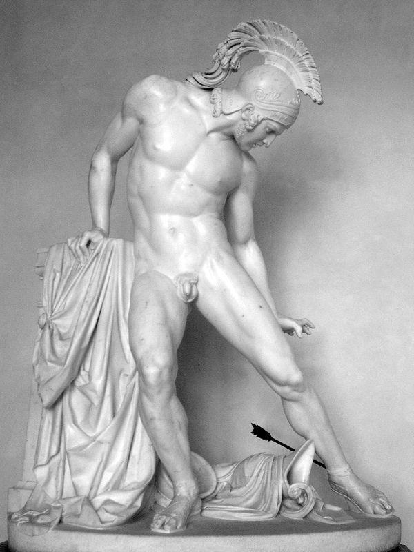 achilles heel .... marble perfection