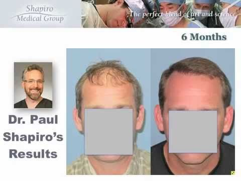 Hair Transplant Surgery Result with Shapiro Medical Group Repair Patient...