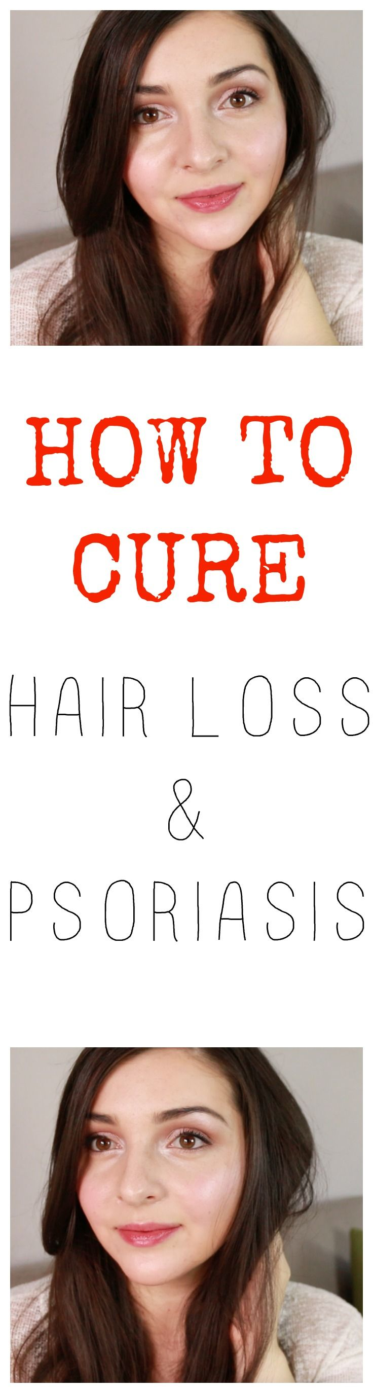 How to cure psoriasis, how to cure hair loss, how to heal psoriasis, dealing with psoriasis, healing hair loss, hair loss story, How I overcame my psoriasis and hair loss, Hair care routine, my natural hair care routine, natural hair care routine, natural treatment for psoriasis, products for psoriasis, shampoos for hair loss and psoriasis, healthy hair, how to get healthy scalp, healing balm for psoriasis, scalp massage, scalp oil massage, green beauty, green beauty blogger, natural beauty…