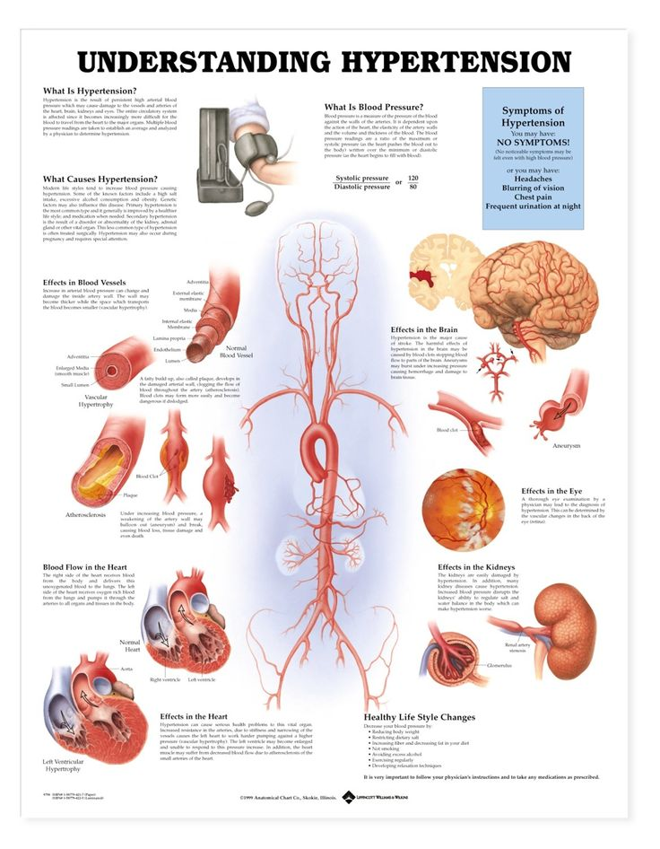 Hypertension Chart - High Blood Pressure Poster - AnatomyStuff