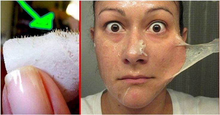 Les époques polluées sur la peau de la personne