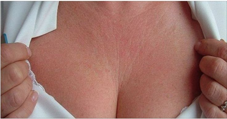 2 incríveis receitas para reduzir as rugas e linhas finas dos seios e pescoço! | Cura pela Natureza