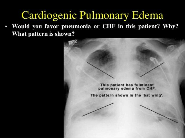 teaching plan for edema He has 4+ pitting edema, moist crackles throughout lung fields, and labored   provide a teaching plan (avoid using terminology that the patient and family may .