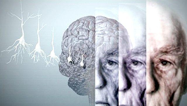 A beszédből felismerhető az Alzheimer-kór