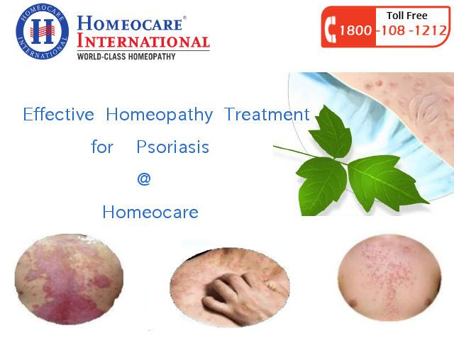 Psoriasis is a chronic type of Skin Disorder. It makes difficulty with painful patches and reddened skin. People with Psoriasis will get more complications while they working and can be disturbed through the painful skin problems. Homeocare International is an outstanding Homeopathy clinic it has well treated Homeopathy Medicines for all type of Psoriasis disorders. Cure your Psoriasis problems completely and get your skin to normal stage.