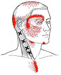 Sternocliedomastoid - Trigger Point Map