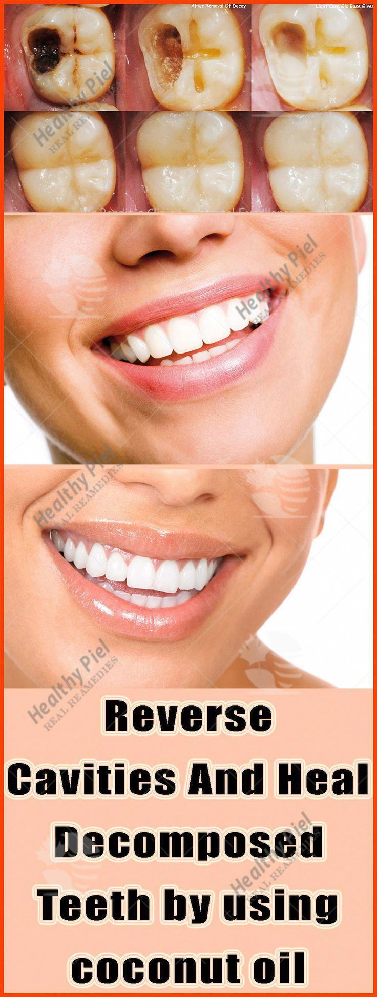 BY USING COCONUT OIL YOU WILL BE ABLE TO REVERSE CAVITIES