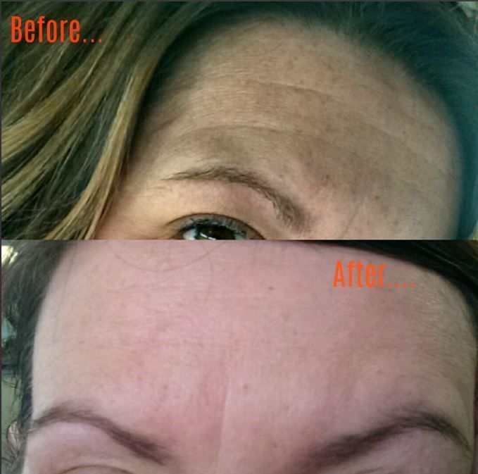 How To Remove Fine Lines On Forehead Naturally