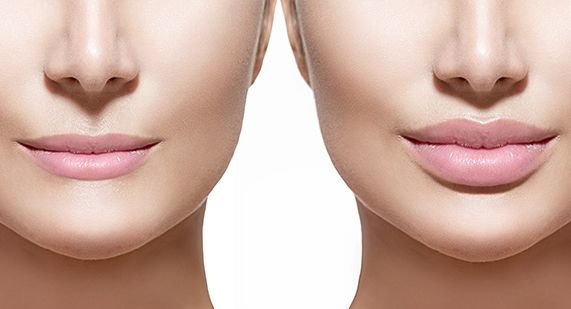 Want Beautiful Lips? Lip Injection and Fillers • increased lip volume • corrected asymmetry • smooth out fine lines on and around the lips • reshaping of the lips Book a complimentary consultation at 403-202-4038