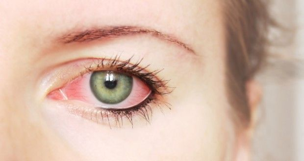 Top 10 Home Remedies for Sore Eyes | Health Digezt