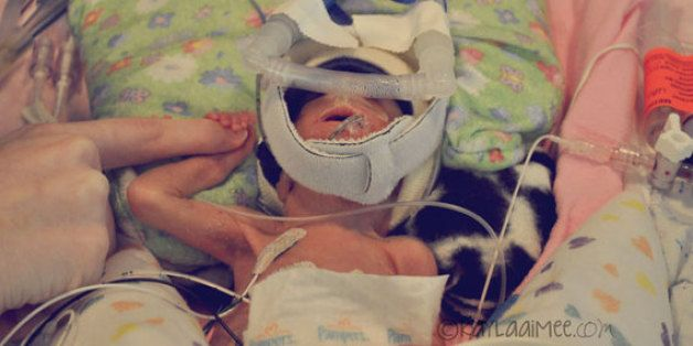 The Surprising Thing I Learned From Having A Micro-Preemie