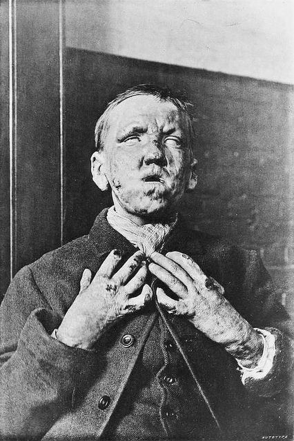 A man afflicted with tubercular leprosy, 1891.