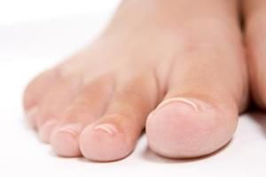 Best Toenail Fungus Treatments | LIVESTRONG.COM