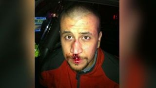 Lawyer for George Zimmerman 'frustrated' at prosecutors' withholding of graphic photo