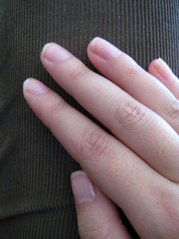 How To Get Rid Of An Infected Hangnail & Toenail | Nail Art / Nail ...