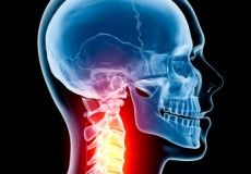 Cervical Radiculopathy: Current Research and Best Practice