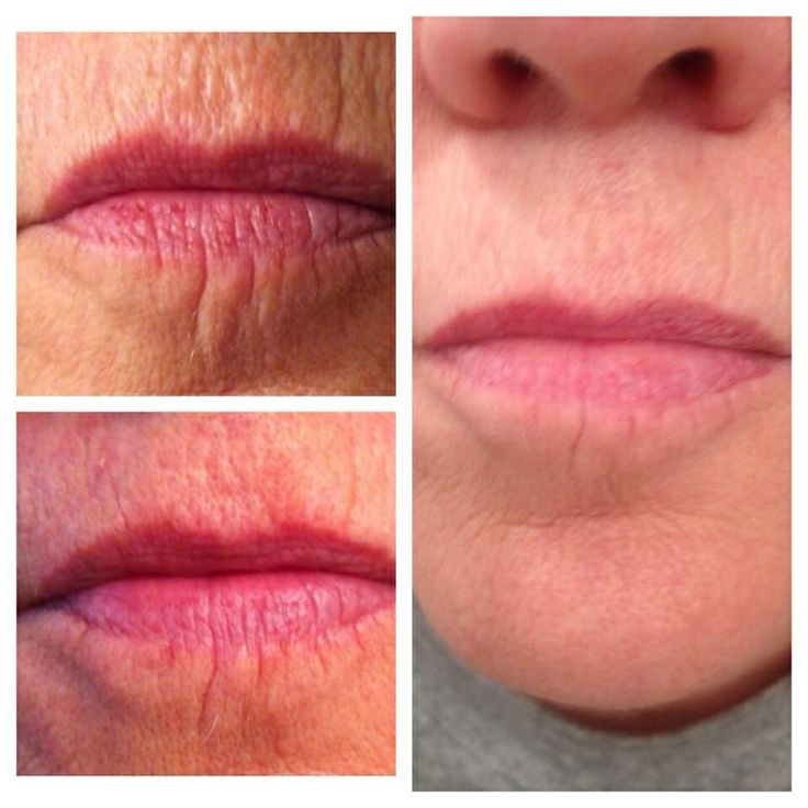 The first place a women starts to show her age is around her lips. Look years younger with NeriumAD!
