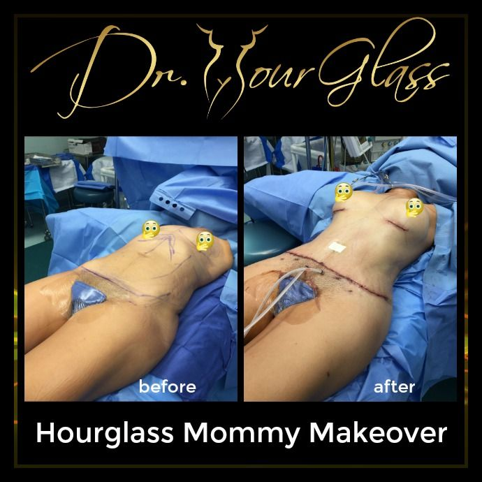 Hourglass Mommy Makeover is a favorable surgical procedure for mommies out there who may want to restore their beautiful curve after pregnancy. We are all aware that pregnancy have an unfavorable impact on a woman's body and this procedure can be a solution to look great again after your pregnancy.