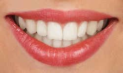 """lingual braces are hidden behind the teeth and are therefore """"invisible"""" when you smile. Lingual braces are 100% customized to match the shape of your teeth and therefore the metal appliances are created uniquely for you."""