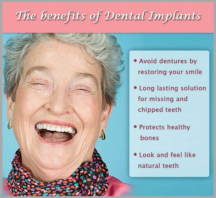 Pin on dental implants before and after website