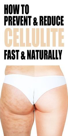 Whether you're big, small or somewhere in the middle, most women have cellulite at some stage of their life and it's a huge pain in the ASS (literally!) Because cellulite has many causes, it can affect many body types for a variety of reasons. This short video will give you some great tips, tricks and alternative methods to help REDUCE & PREVENT cellulite.