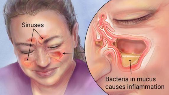 Si vous avez une infection des sinus qui ne veut pas se soigner, abandonnez toutes les méthodes conventionnelles et les traitements médicamenteux et faites